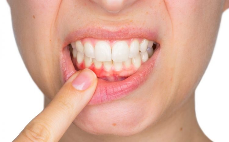 5 Most Probable Factors Leading to Periodontal Diseases