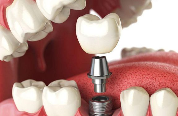 Is Dental Implant Safe in Pakistan?
