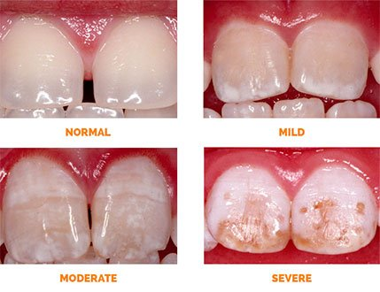 Fluorosis Dental Stains