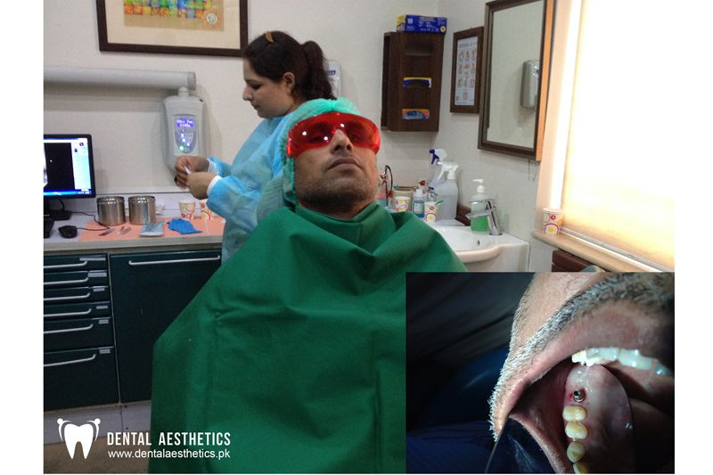 Dental Implant Before After 2