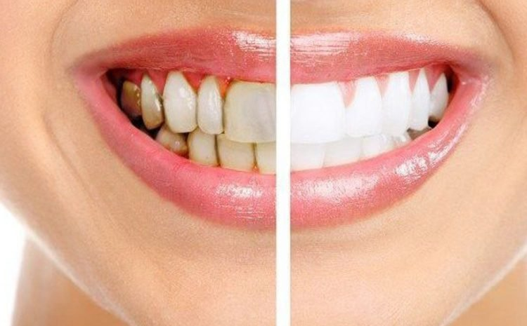 How To Treat With Different Types Of Teeth Stains?