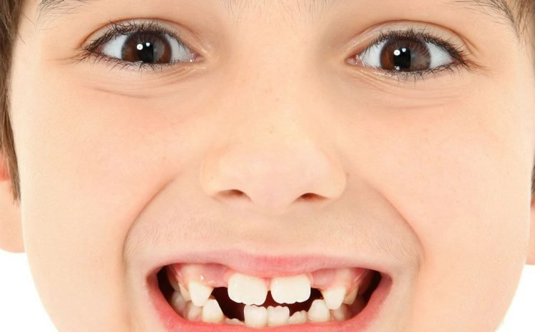 Baby Teeth Looks So Crazy In Children – Ask The Dentist