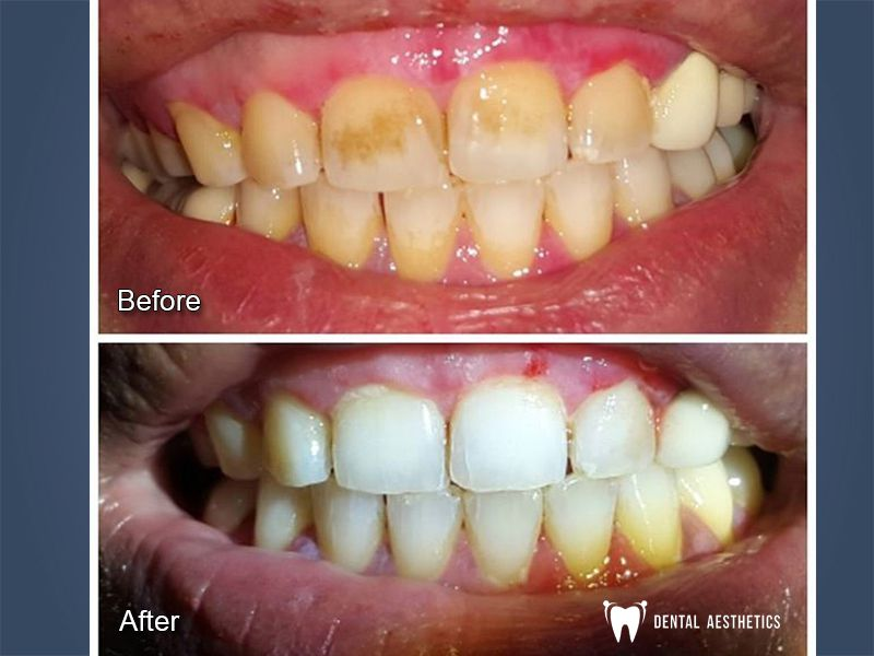 Teeth Scaling Before After Dental Aesthetics 6