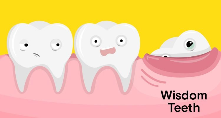 What is Wisdom Tooth?