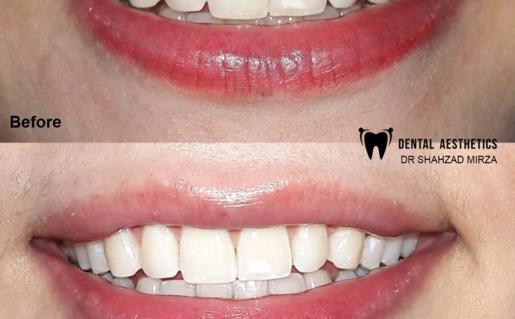Teeth Whitening For Beautiful Smile