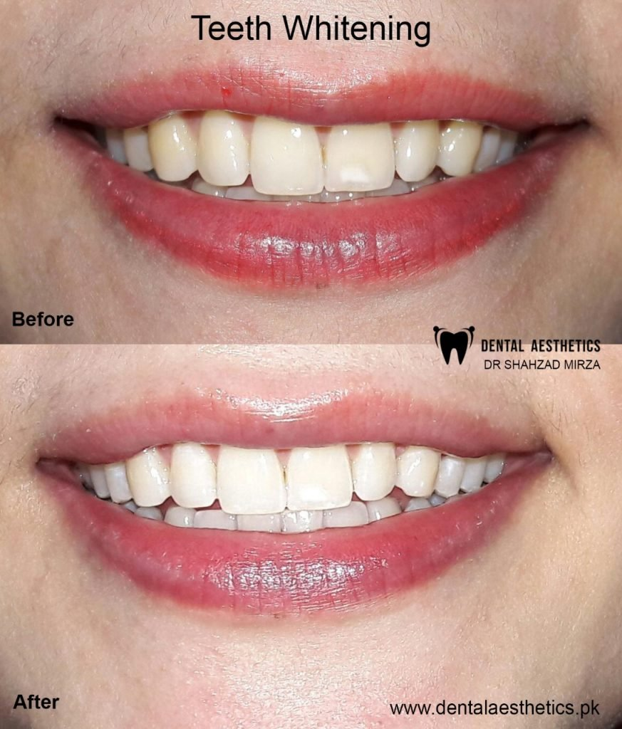 Teeth Whitening Procedure before and after