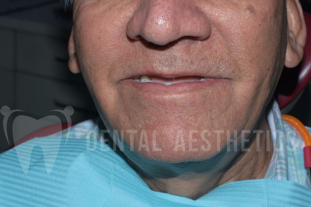 All On Four Dental Implants 3