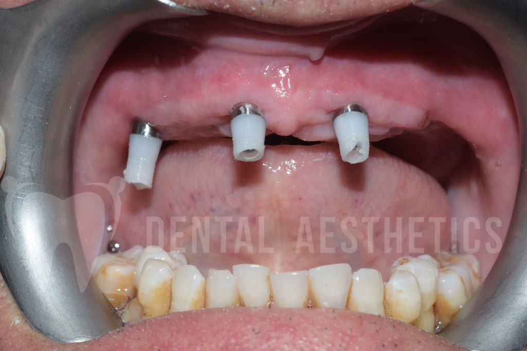 All On Four Dental Implants 5