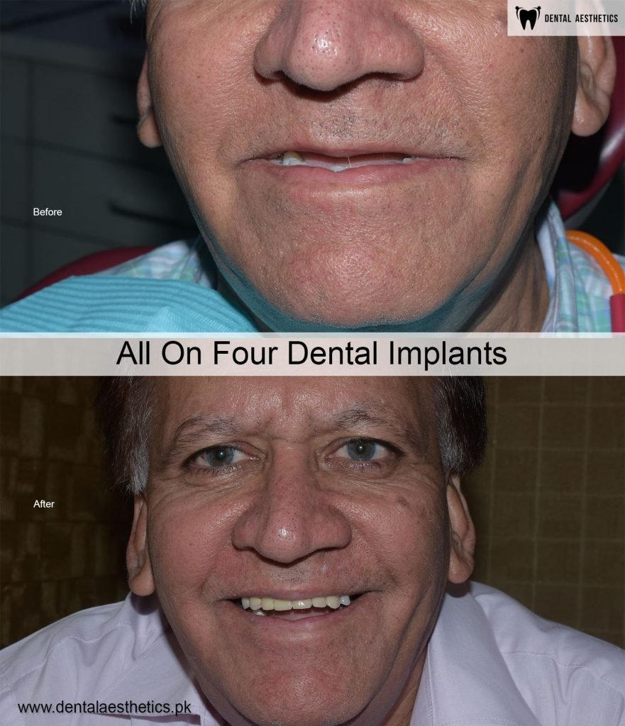 All On Four Dental Implants Before After Lahroe Pakistan