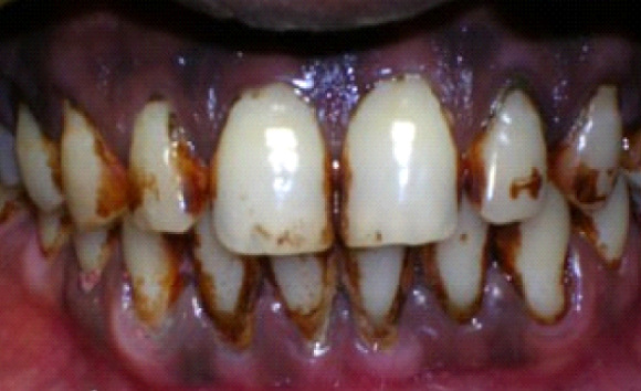 EFFECTS OF SMOKING ON TEETH AND GUMS
