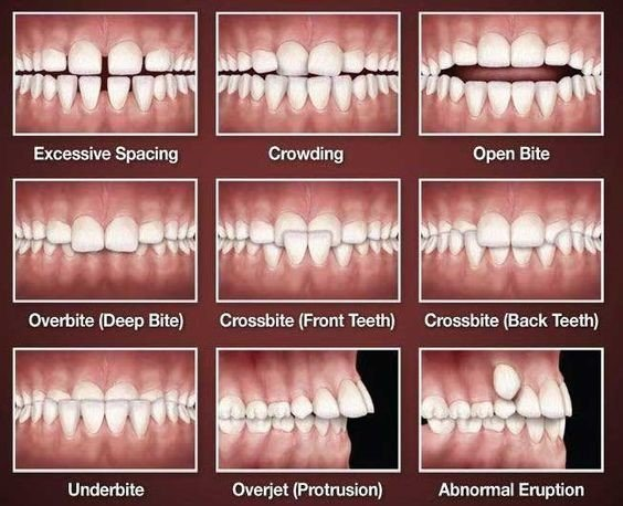 Dental Problems With Growing Children