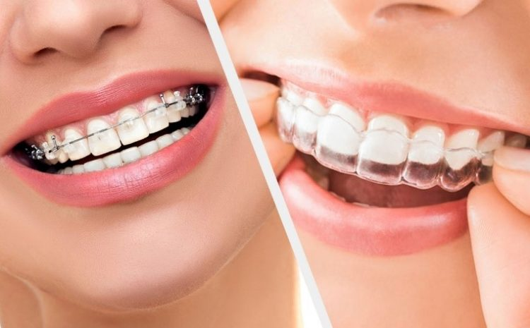 5 Reasons Adults are Straightening Teeth with Aligners