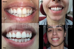 Gum Disease Laser Treatment Lahore