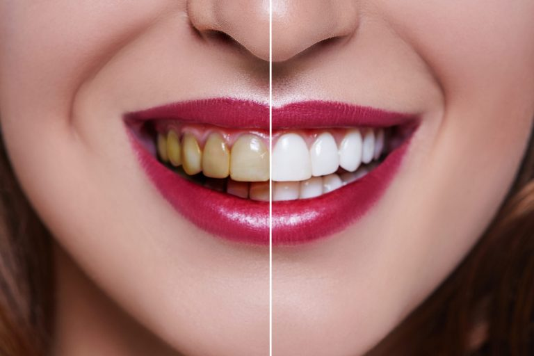 Dental Veneers in Pakistan - Porcelain Teeth Veneer Treatment