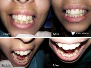 teeth scaling before after dental aesthetics