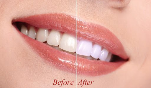 Teeth whitening before vs after