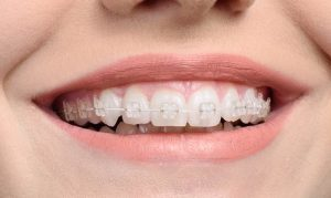 Invisalign braces in lahore