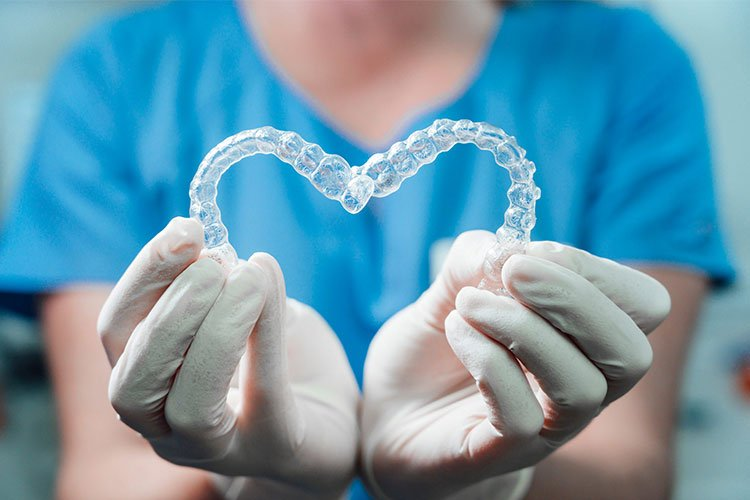 Best Clear Aligners