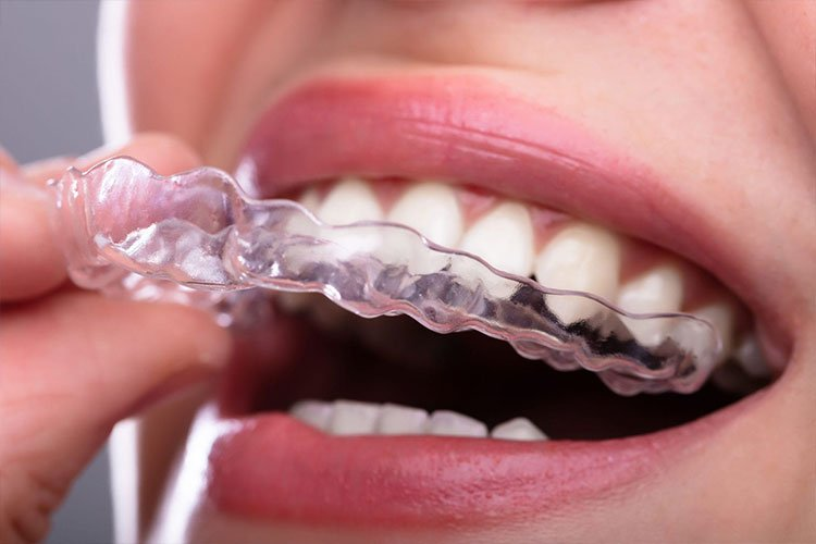 Clear Aligners or Invisalign Treatment
