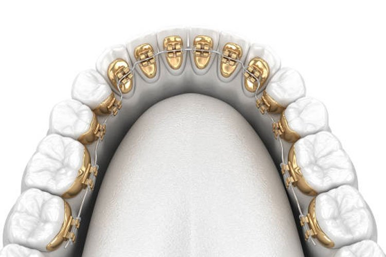 Lingual Braces Treatment