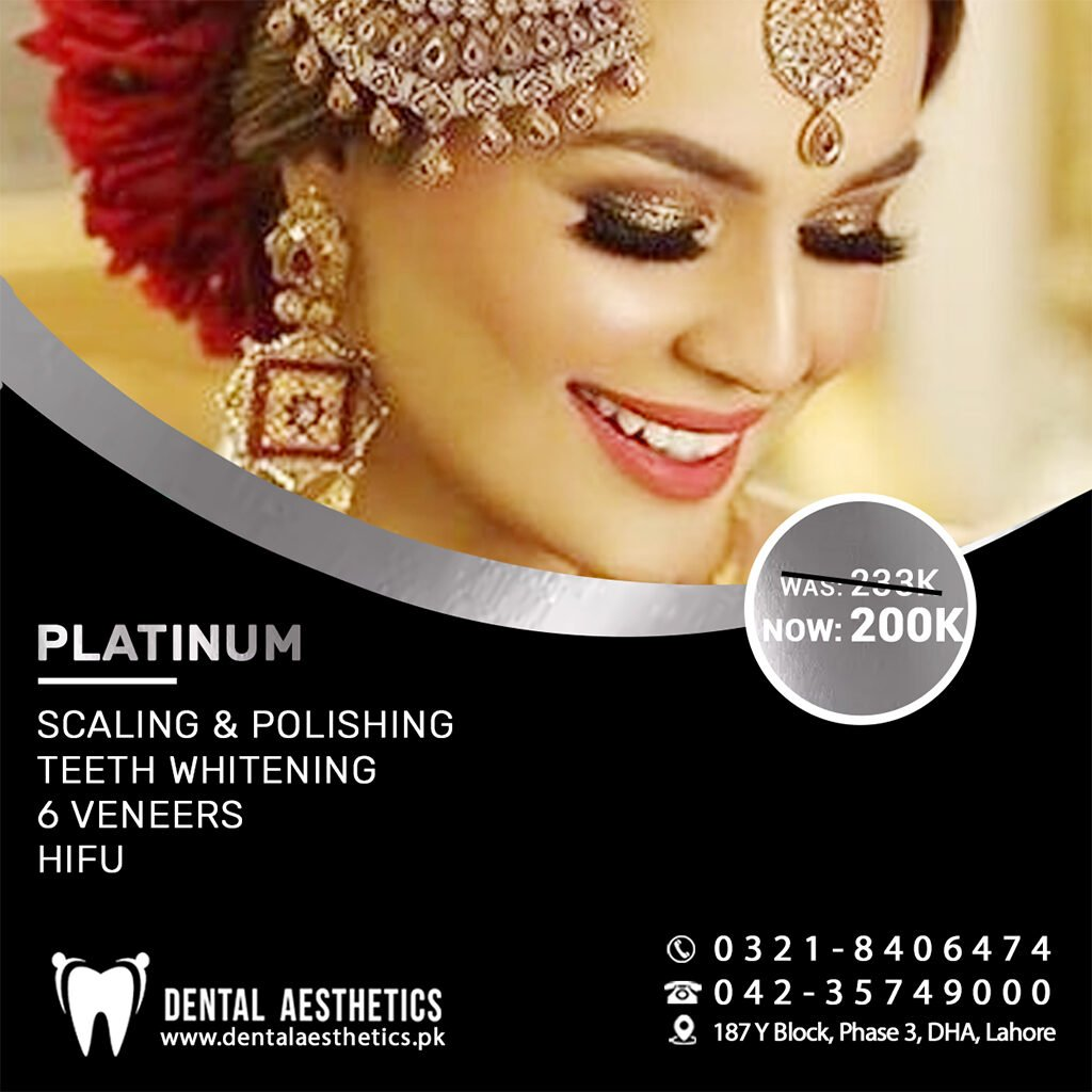 Platinum DA Bridal Package