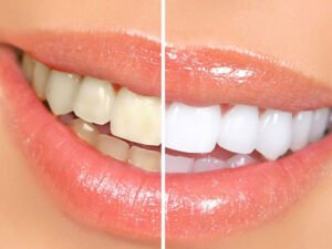 teeth whitening cost in lahore