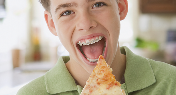 EATING WITH BRACES: WHAT TO BE AWARE OF? - Orthosmile Orthodontics