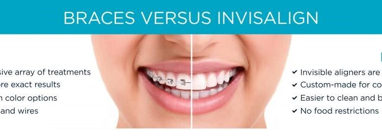 Best Invisible Aligners Dentists
