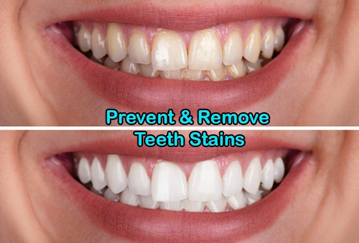 remove teeth stains, remove tooth stains, prevent teeth stains, prevent teeth staining, get whiter teeth, prevent getting teeth stains, foods that cause teeth stains