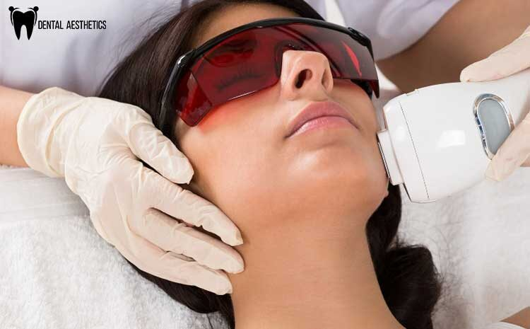 Investing In Laser Hair Removal
