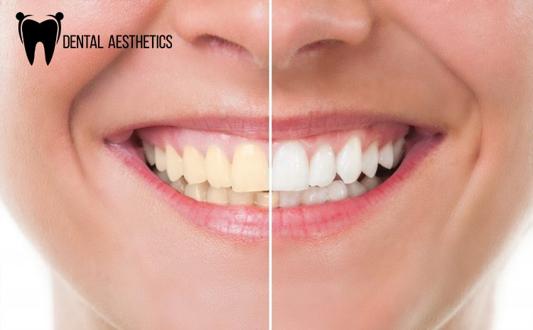 teeth-whitening-1024x680.jpg