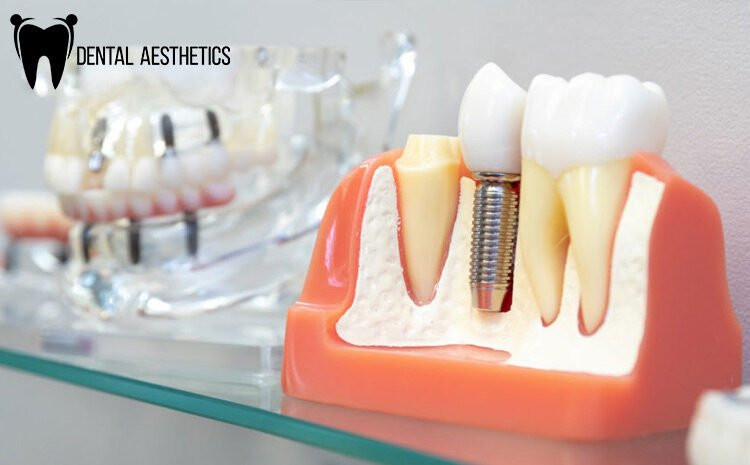 4 Reasons Why Dental Implants In Lahore Pakistan Are Getting Popular
