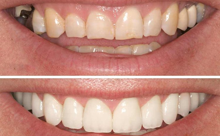 Teeth Makeover Cost