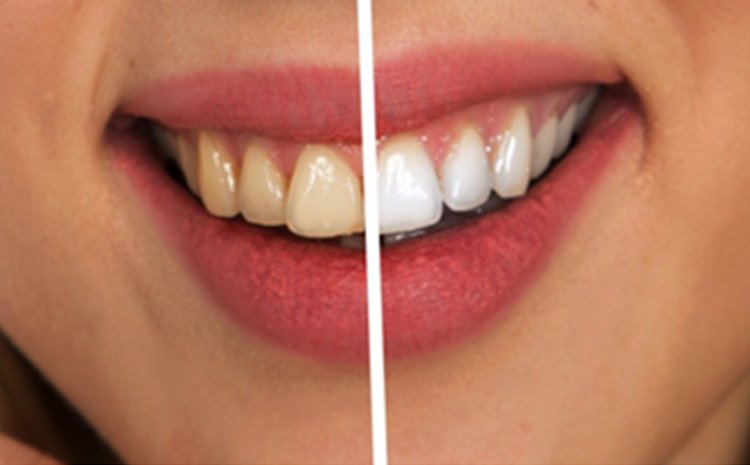 One-Day Smile Makeover