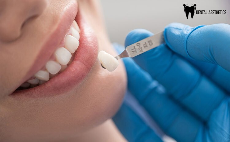 Everything You Need To Know About Porcelain Veneers