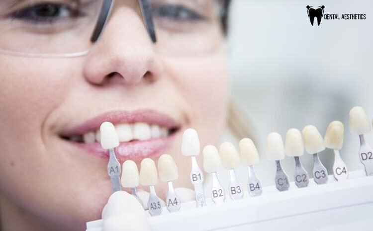 Dental Implants Pakistan – How Can They Improve Your Oral Health?