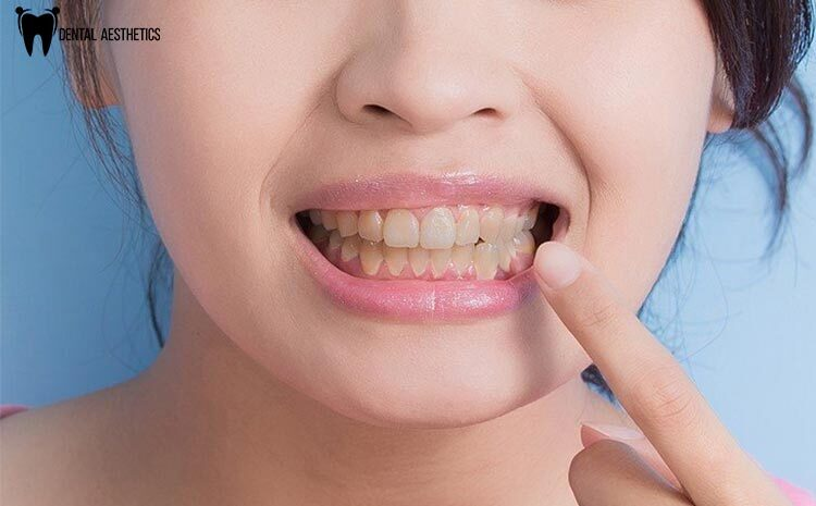 Effective Dental Treatments That Brighten Up Stained And Discoloured Teeth