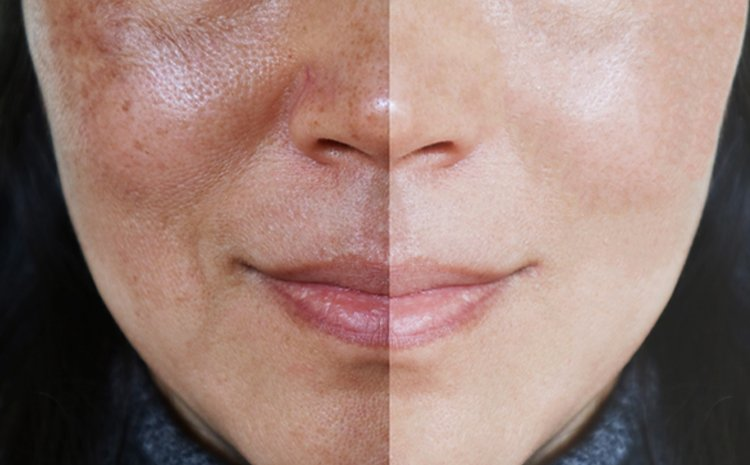 Hydra Facial in DHA Lahore