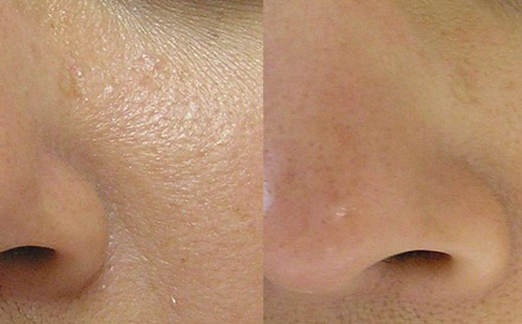 Best HydraFacial in Lahore
