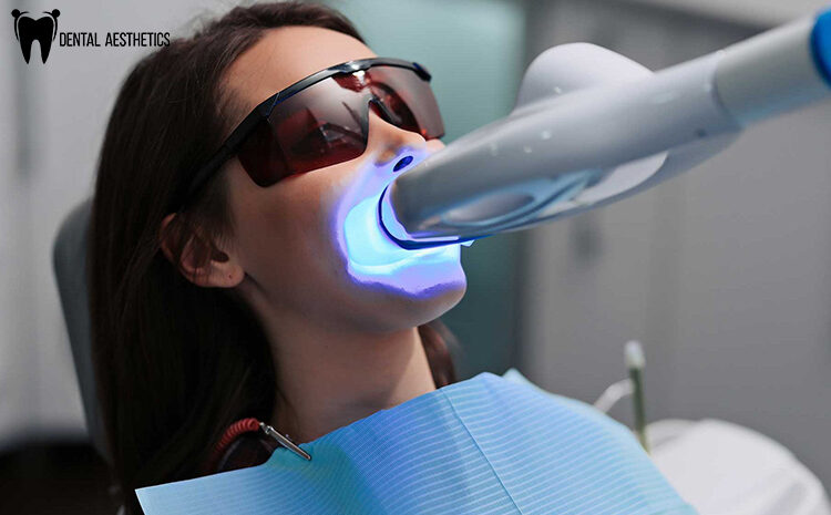 Laser Teeth Whitening – Everything You Need To Know About It