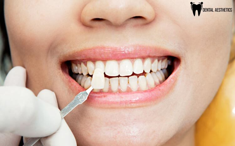 What Are The Benefits OF Getting Porcelain Veneers?
